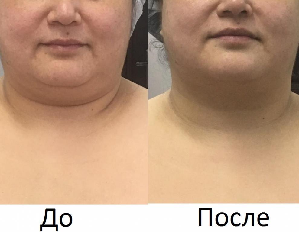 Новый 3D Smas Лифтинг, новейшая технология, впервые в Казахстане